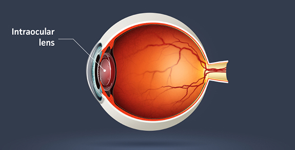 intraocular-lens-implant-iol