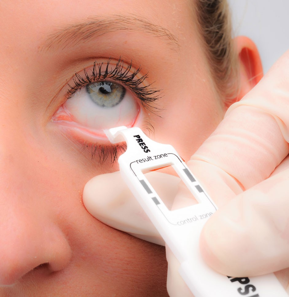 inflammadry-dry-eye-treatment